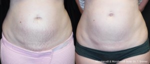 before and after of abdomen treatment